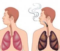 نوشیدنی معجزه آسا , نجات سیگاری ها , سلامتی ریه