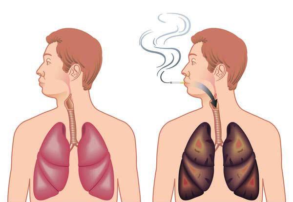 طب سنتی و اسلامی  , نوشیدنی معجزه آسا برای نجات سیگاری ها