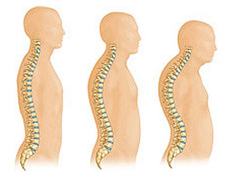 علائم پوکی استخوان، درمان پوکی استخوان