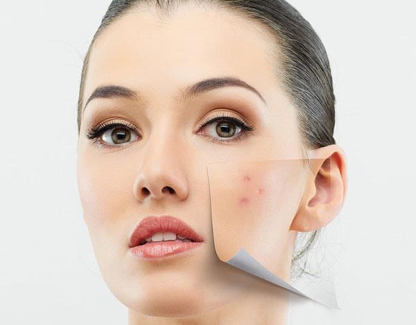 پوست  , پاکسازی پوست تان را خودتان انجام دهید