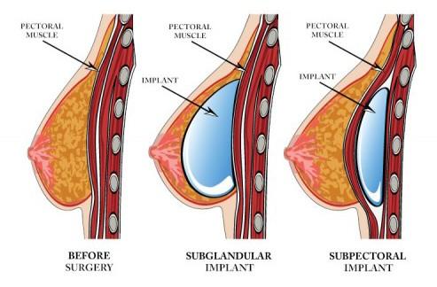 بزرگ کردن سینه,راهکارهای بزرگ کردن سینه,پروتز سینه