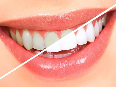 مضرات روش های زیبایی , سفید کننده دندان