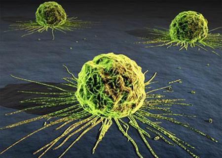 علایم سرطان,نشانه های سرطان, انواع سرطان