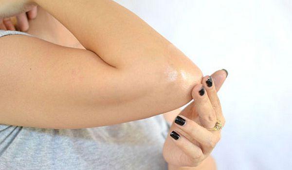 پوست  , از بین بردن سیاهی آرنج و زانو با درمان گیاهی