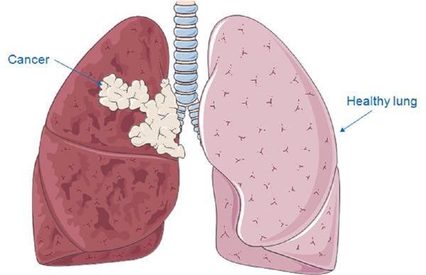 علایم سرطان ریه