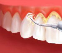 از بین بردن جرم دندان, جرم گیری