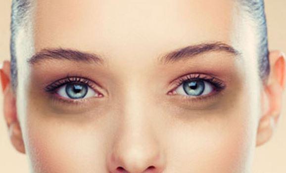 درمان سیاهی دور چشم | پف زیر چشم