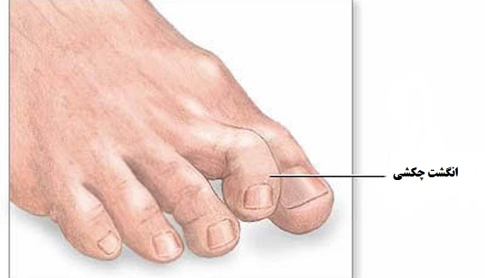 تقویت انگشتان پا, انگشت چکشی