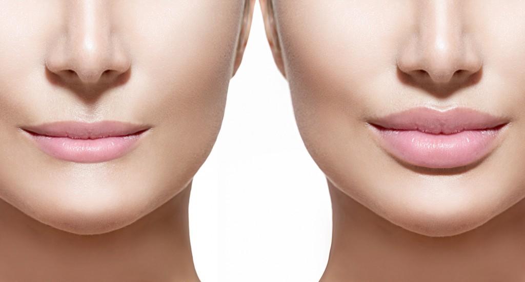 برجسته کردن لب بدون جراحی , حجیم کردن لب,حجم دادن به لب , برجسته کردن لب بطور طبیعی