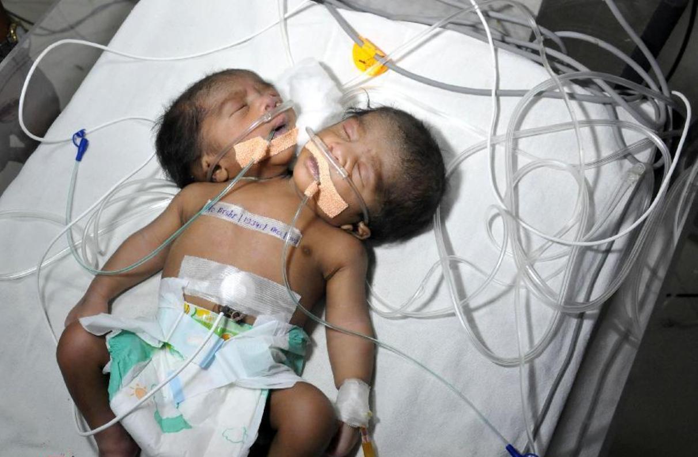 تولد پسر دوسر در هند+تصاویر