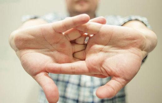 شکستن قولنج انگشتان دست