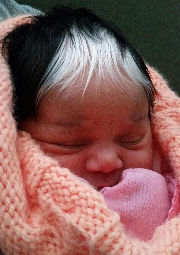 نوزادی با موهای سفید