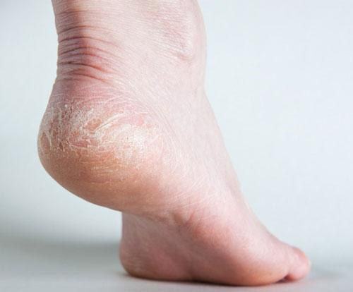 درمان خشکی و ترک پا
