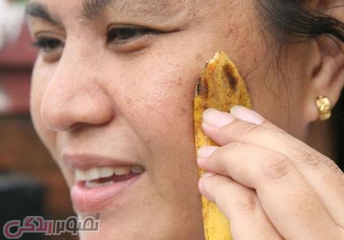 تاثیر پوست موز بر زیبایی,خواص درمانی پوست موز