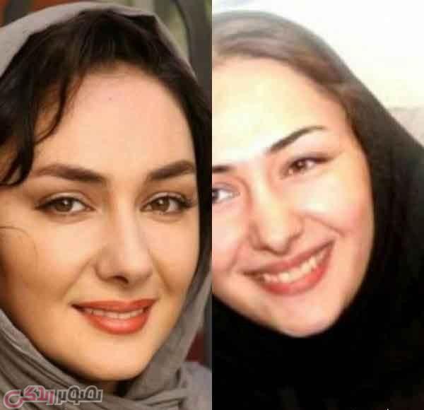 عکس قبل و بعد عمل بینی هانیه توسلی