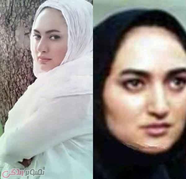 عکس قبل و بعد عمل بینی صبا کمالی