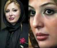 عکس بازیگران زن ایرانی قبل و بعد از عمل بینی