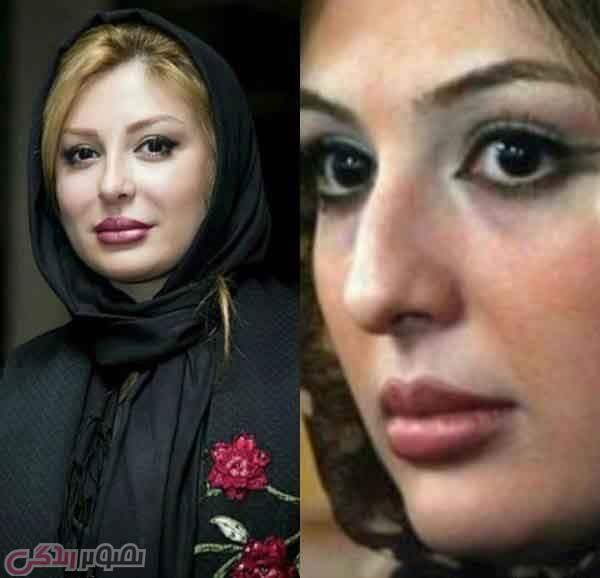 شخصیت های ایرانی  , عکس قبل و بعد از عمل بینی افراد مشهور را ببینید