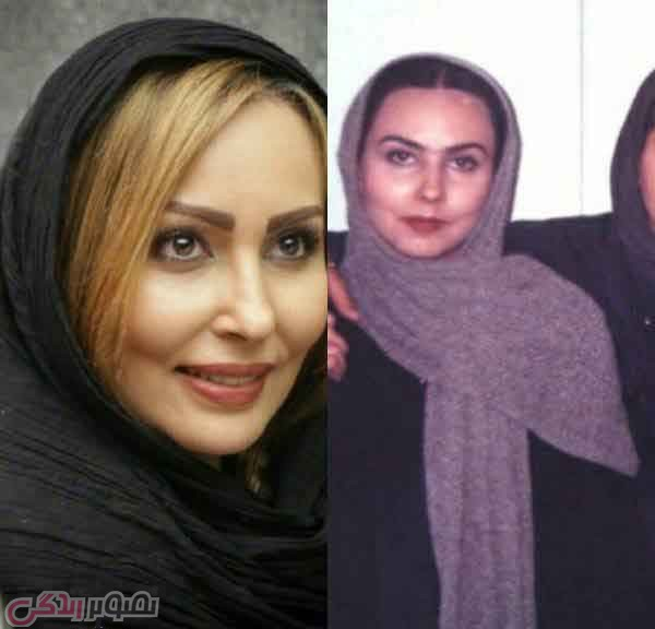 عکس قبل و بعد عمل بینی پرستو صالحی