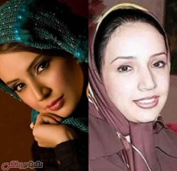 عکس قبل و بعد عمل بینی شبنم قلی خانی