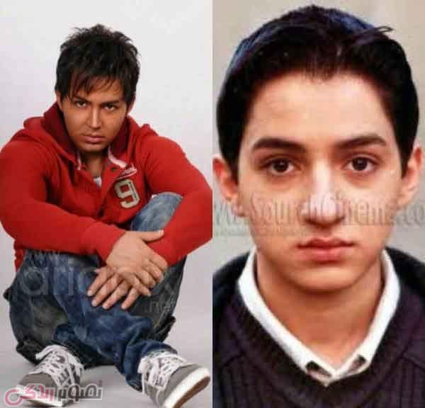 عکس قبل و بعد عمل بینی شهنام شهابی