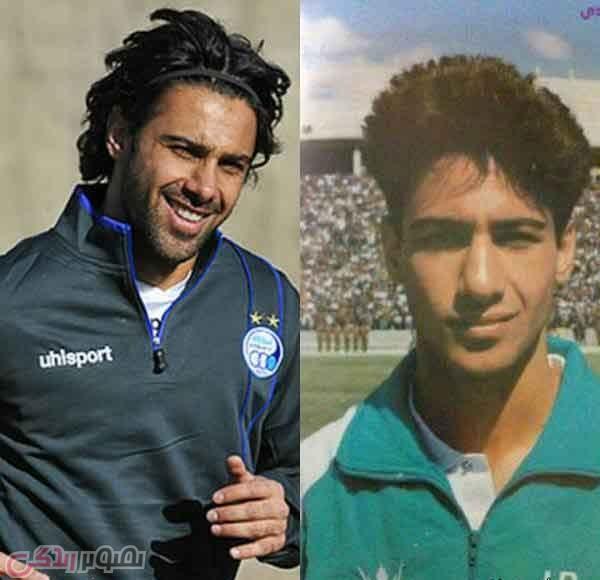 عکس قبل و بعد عمل بینی فرهاد مجیدی