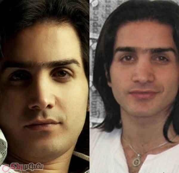 عکس قبل و بعد عمل بینی محسن یگانه