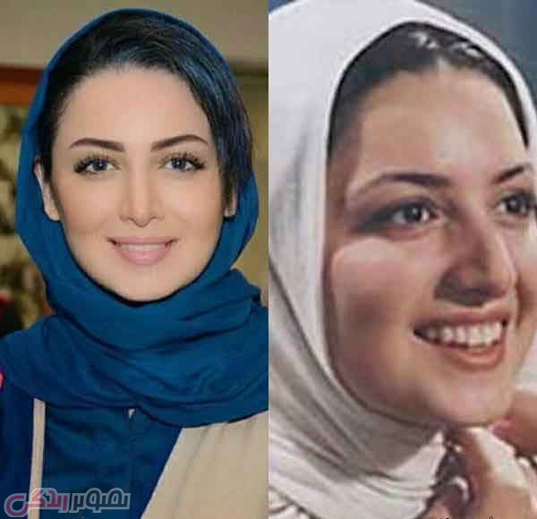 عکس قبل و بعد عمل بینی شیلا خداداد