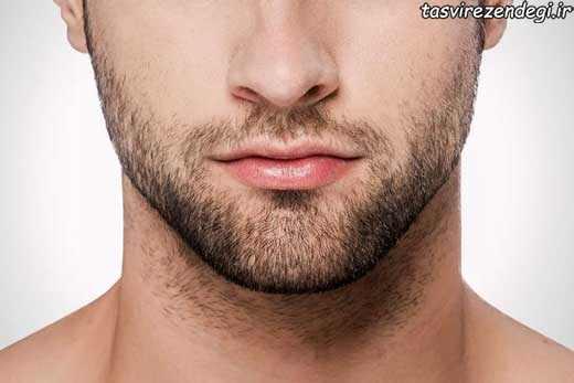 کم پشتی ریش