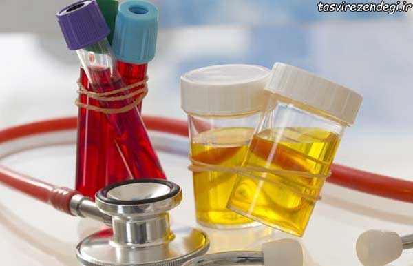 نتیجه آرمایش خون و ادرار , خواندن جواب آزمایش خون و ادرار