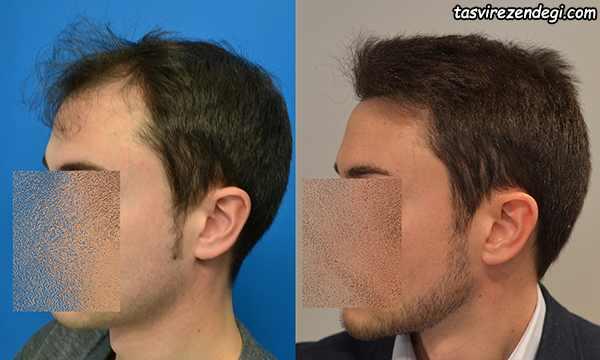 کاشت مو قبل و بعد از جراحی کاشت مو