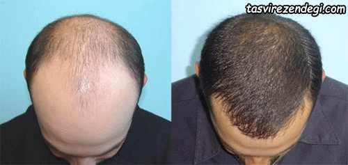عکس قبل و بعد از پیوند موی سر مردانه