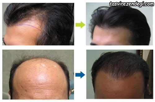 عکس قبل و بعد از عمل کاشت مو و پیوند مو