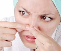 درمان جوش صورت, از بین بردن جوش صورت