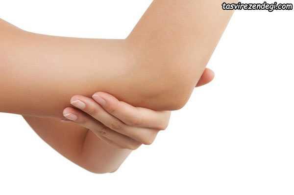 رفع سیاهی آرنج و زانو