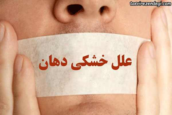 علل خشکی دهان