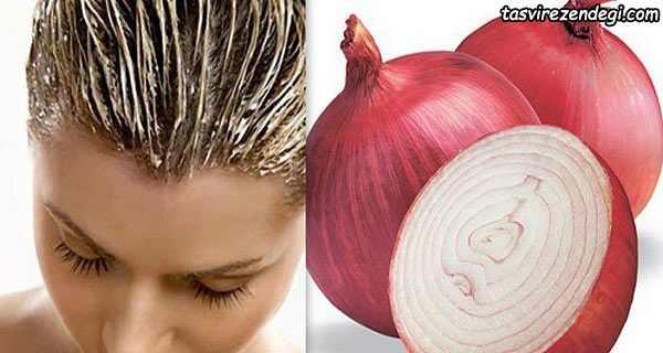 فواید آب پیاز برای درمان ریزش مو