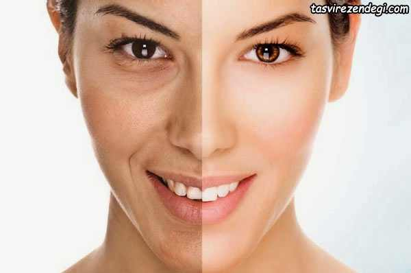 کاهش چین و چروک صورت , ماسک طبیعی