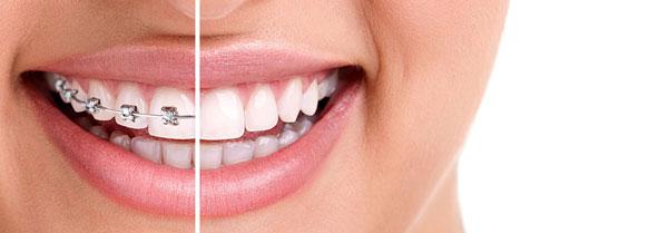 ارتودنسی دندان - لمینیت