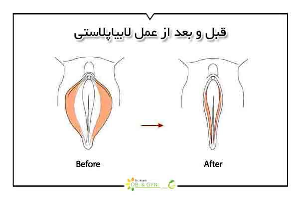 قبل و بعد از عمل لابیاپلاستی - دکتر سعیده اسدی