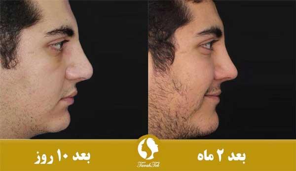 ورم بینی قبل و بعد از عمل زیبایی