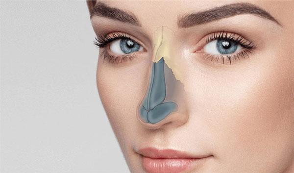 Rhinoplasty - جراحی بینی