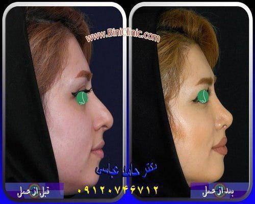 جراحی بینی قبل و بعد از عمل زیبایی