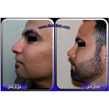 قبل و بعد از عمل بینی آقایان