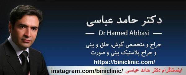 دکتر حامد عباسی جراح پلاستیک بینی و صورت