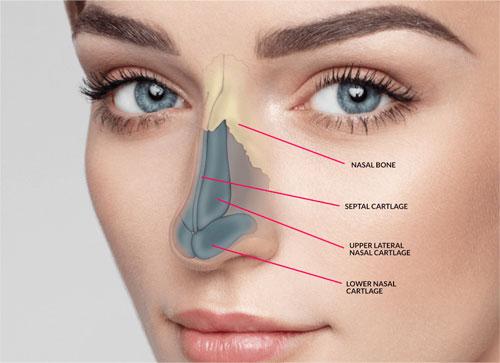 آشنایی با انواع جراحی های بینی استخوانی و گوشتی • مجله