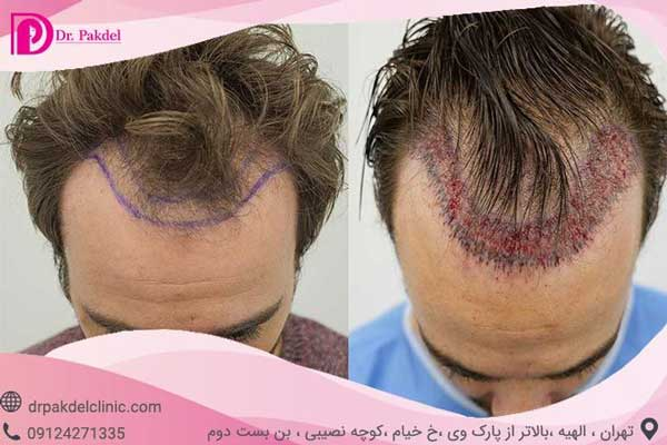 کاشت مو، عکس قبل و بعد از عمل
