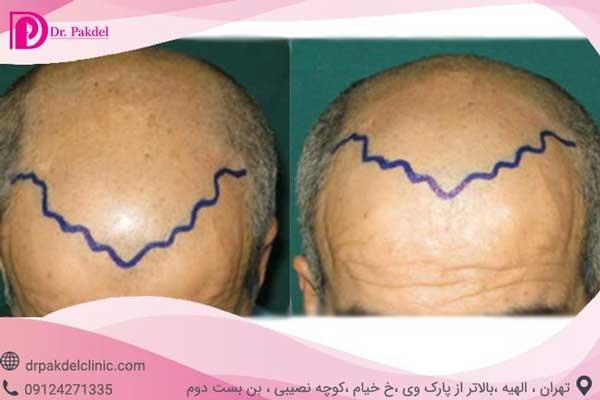 رسم خط مو جهت کاشت مو