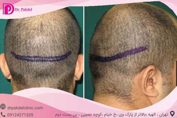 برداشت مو به روش FUT جهت کاشت مو