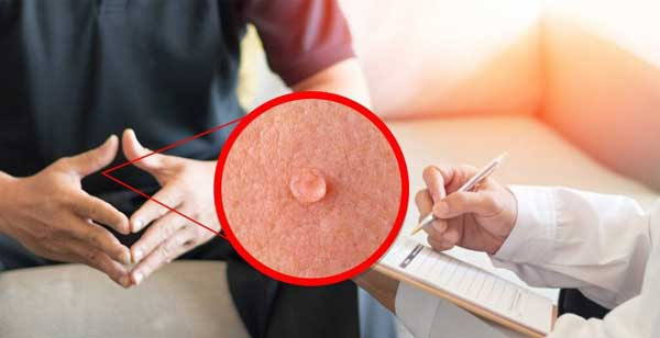 ویروس پاپیلومای انسانی HPV